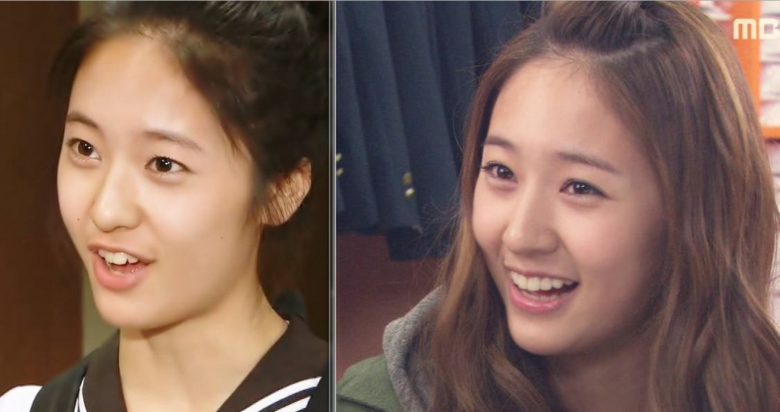 These 16 Before Photos Of Idols Teeth Will Leave Your Jaw Hanging