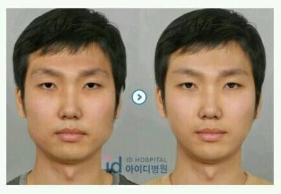 Jaw reduction before and after