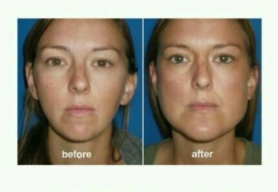 Jaw augmentation before and after