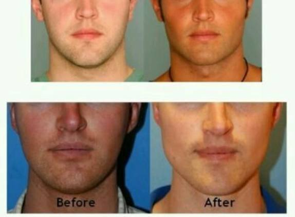 Jaw augmentation surgery: before and after