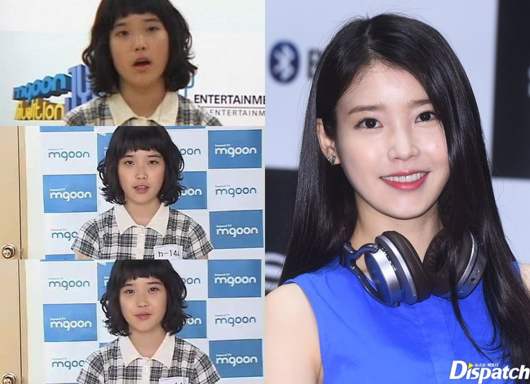 IU_beforeafter