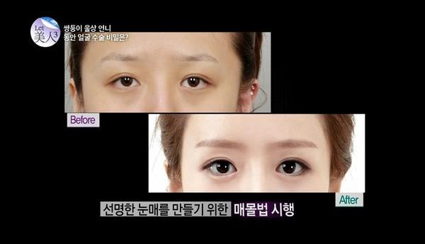 Pertama-tama, pembedahan dimulai dari mata.