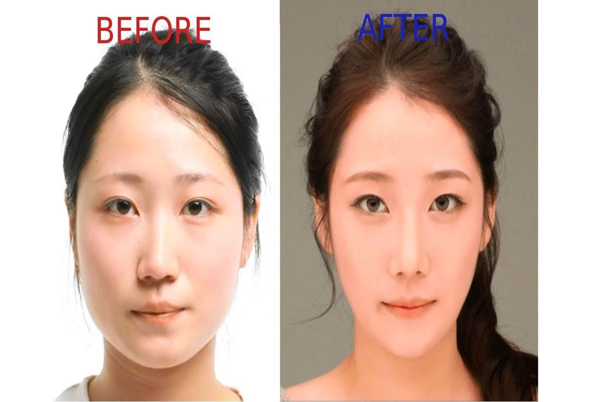 Foreigners Are Charged More For Plastic Surgery In Korea
