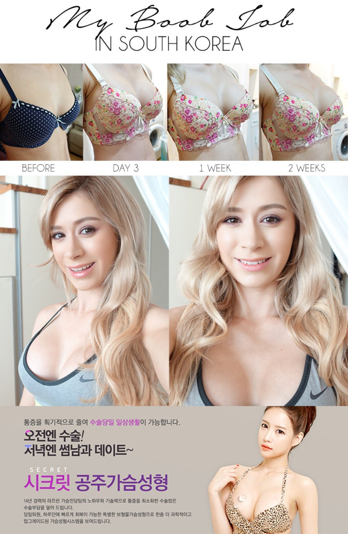 how plastic surgery promotes beauty Cosmetic surgery is a type of plastic surgery that aims to improve appearance find out about the types available and get some tips on choosing wisely.