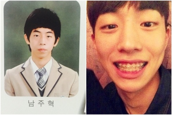 All 7 Of These Idols Did This Cosmetic Surgery And Changed